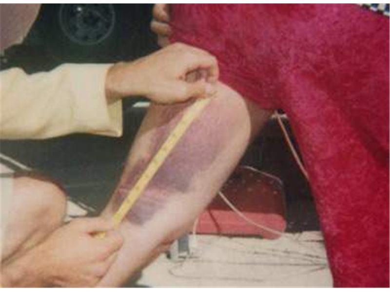 Longest Bruise
