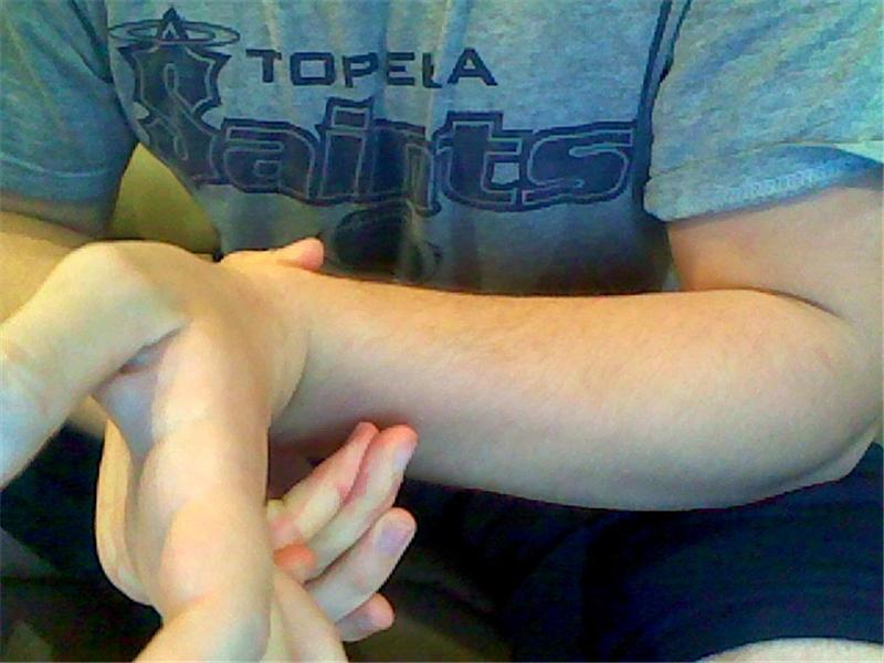 Most Fingers Bent Backwards To Touch One\'s Own Forearm